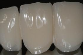 prix de couronne dentaire