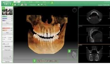 scanner3D