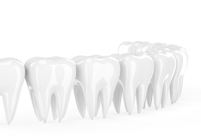 poser des couronnes dentaires