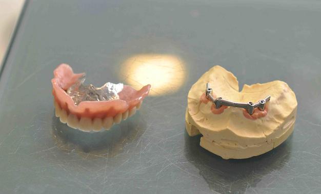 prothèse sur implants et barre de rétention