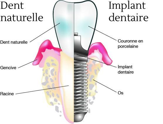 comment choisir son implant dentaire. Black Bedroom Furniture Sets. Home Design Ideas