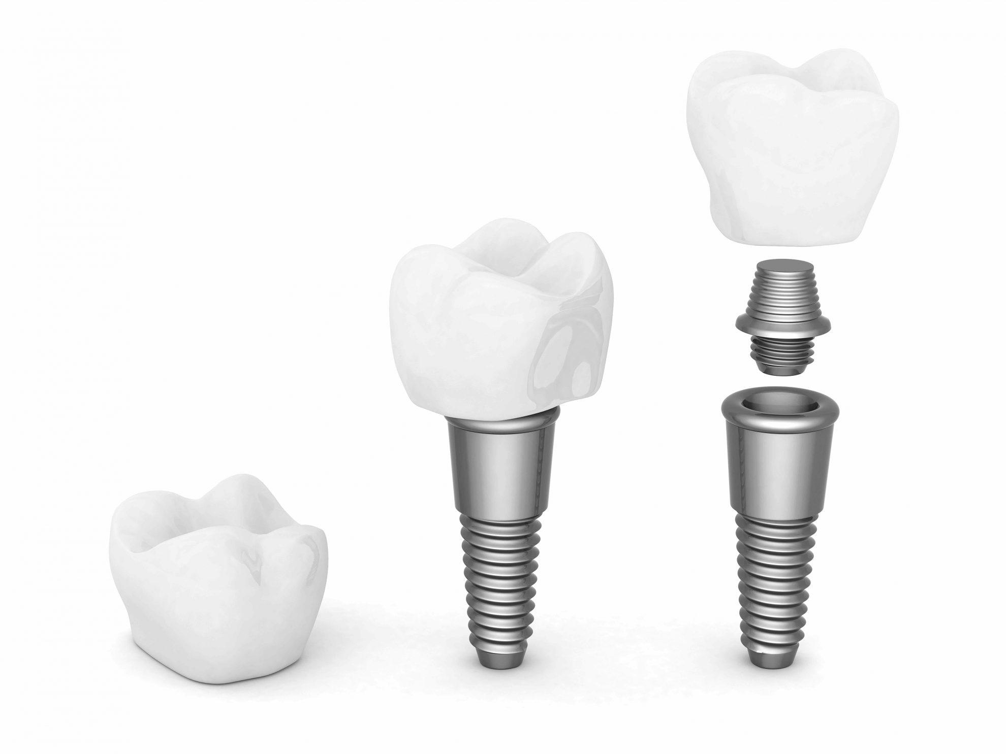 peur des implants dentaires