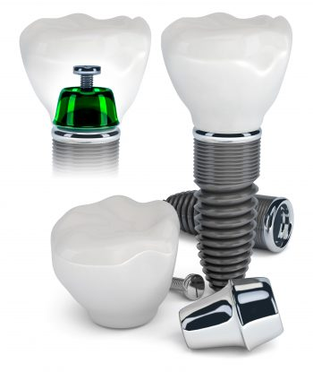 choisir un implant dentaire