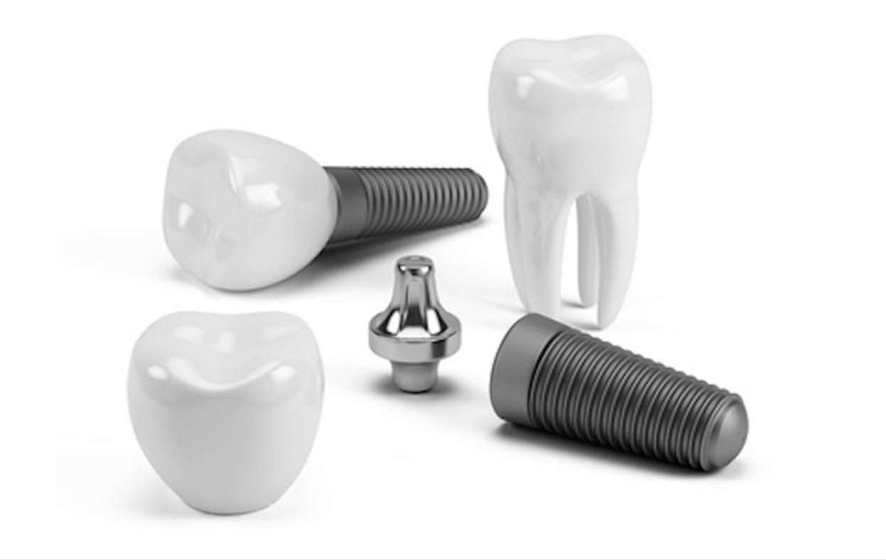 tarif d'un implant dentaire