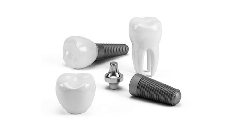 tarif implants dentaires