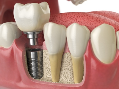 prix soins dentaires tourisme dentaire