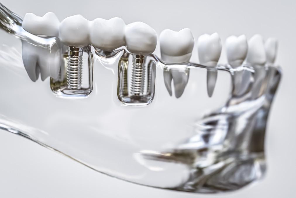 bridge sur implants
