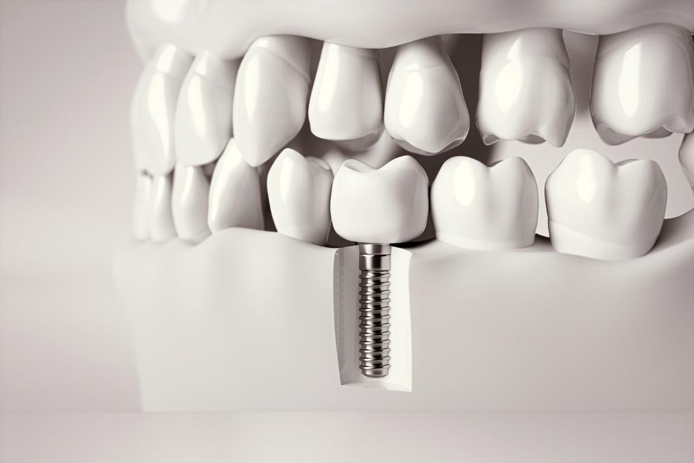 implant dentaire unitaire