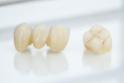 couronnes dentaires hongrie