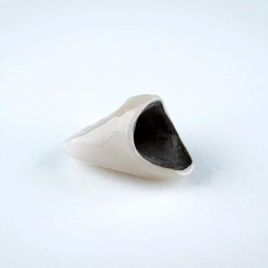 Couronne céramo-métal sans implant