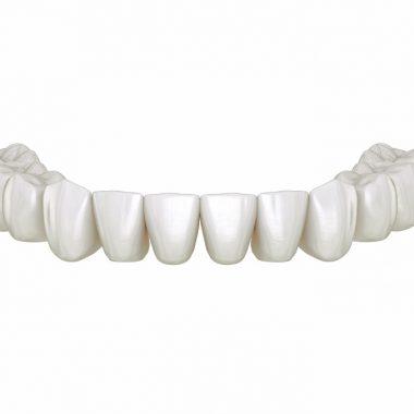bridge complet 12 à 14 dents sans implants