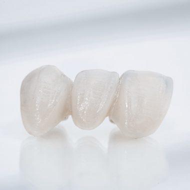 bridge de 3 dents et plus sans implants