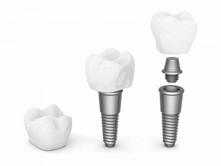 prix implant dentaire